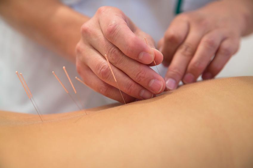acupuncture, scottsdale