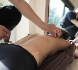 back, pain, acupuncture
