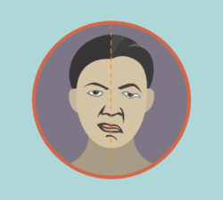 bells, palsy, acupuncture