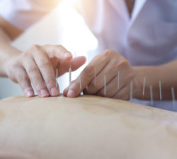 Can Acupuncture Help Me Heal?